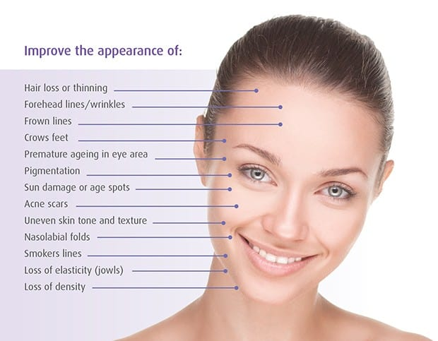 Skin Treatments | micro needling benefits