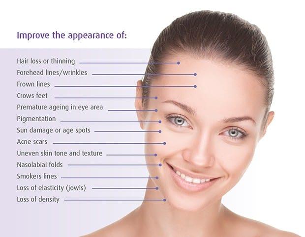 Skin Treatments | micro needling benefits