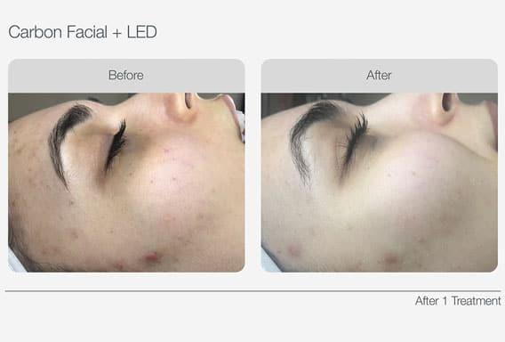Carbon-Facial-+-LED