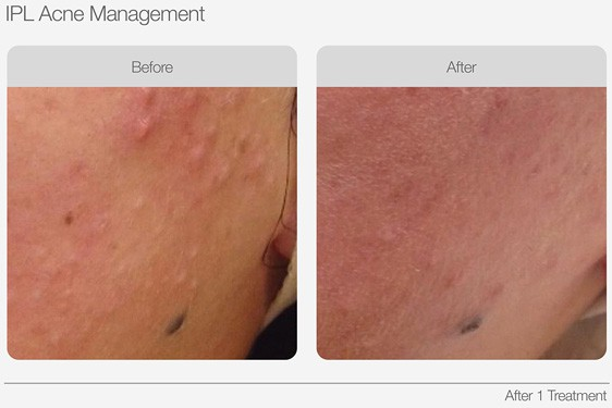 IPL-Acne-Management-Before-&-After-01
