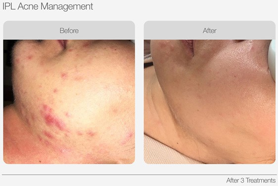IPL-Acne-Management-Before-&-After-02