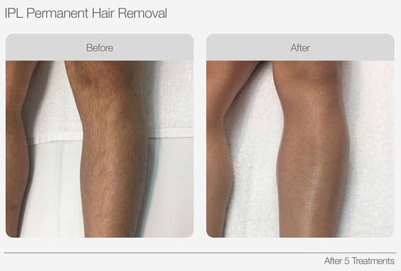 IPL-Hair-Removal-Before-&-After-01