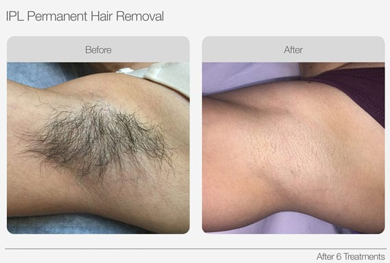 IPL-Hair-Removal-Before-&-After-02