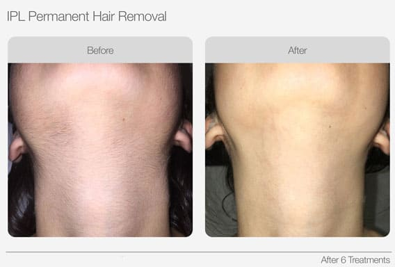 IPL-Hair-Removal-Before-&-After-03