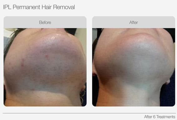 IPL-Hair-Removal-Before-&-After-04