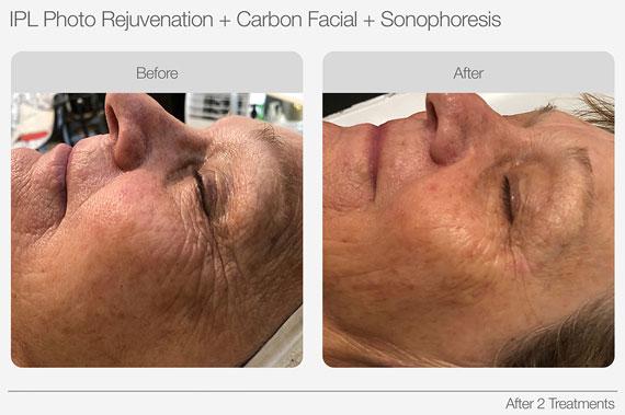 IPL Skin Rejuvenation Anti Aging