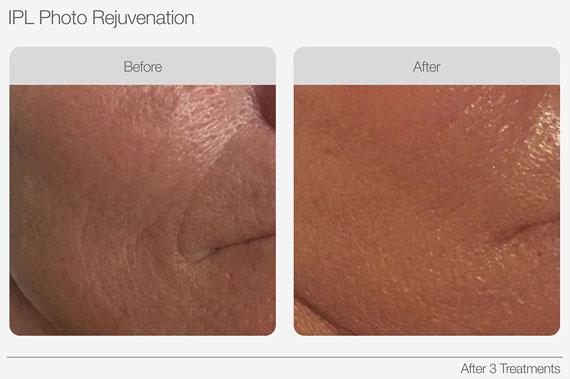 IPL Skin Rejuvenation Anti Wrinkles