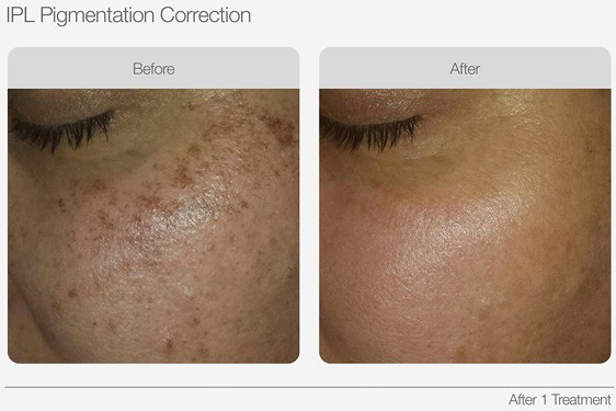 IPL-Pigmentation-Correction-Before-&-After-02