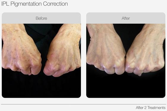 IPL-Pigmentation-Correction-Before-&-After-03