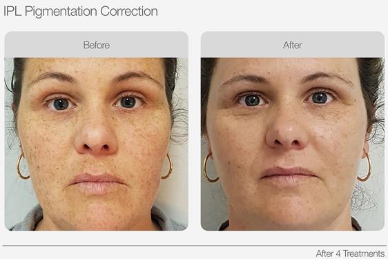 IPL Skin Rejuvenation Skin Tone