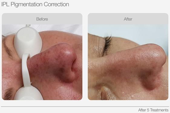 IPL-Pigmentation-Correction-Before-&-After-05