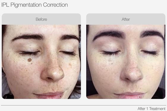 IPL-Pigmentation-Correction-Before-&-After-06