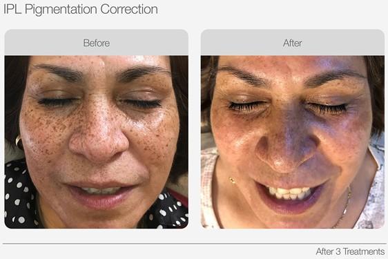 IPL-Pigmentation-Correction-Before-&-After-08