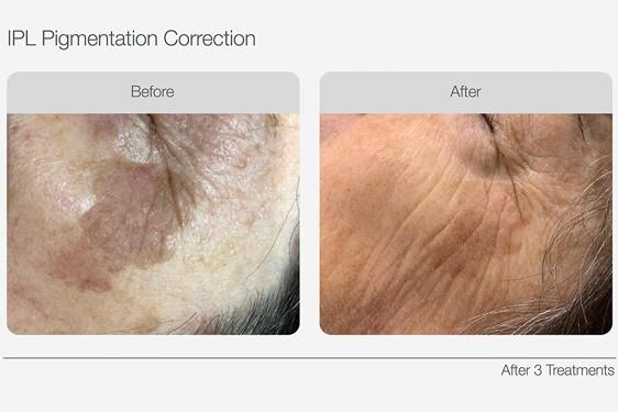 IPL Skin Rejuvenation Pigmentation