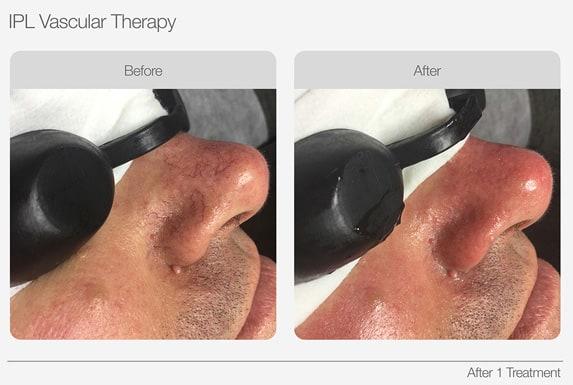 IPL Skin Rejuvenation Vascular Therapy