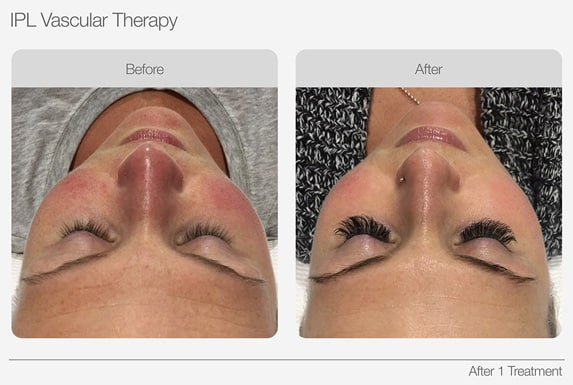 IPL-Vascular-Therapy-Before-&-After-03