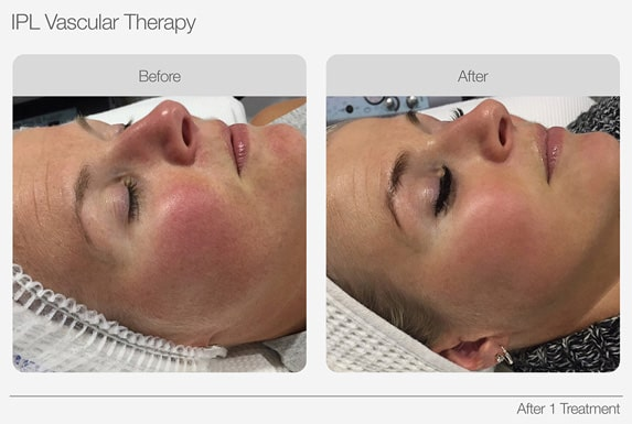 IPL-Vascular-Therapy-Before-&-After-04