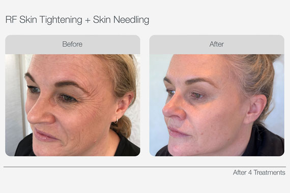 RF-Skin-Tightening-Before-&-After-01