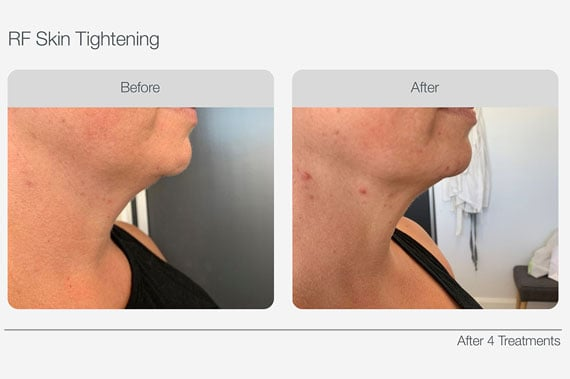 RF-Skin-Tightening-Before-&-After-02