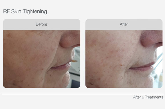 RF-Skin-Tightening-Before-&-After-03